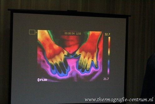 cursus medische thermografie / handen